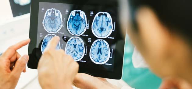 Neurologist examining image